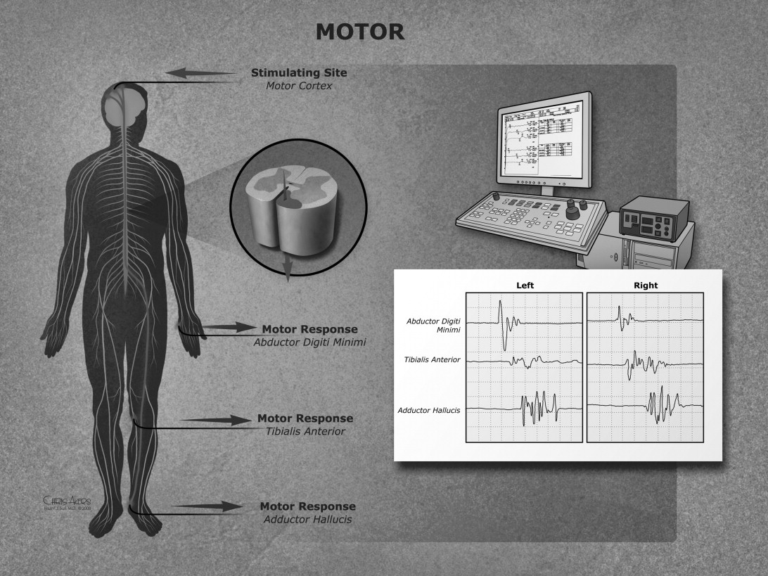 Analysis of motor and somatosensory evoked potentials for Motor evoked potential monitoring