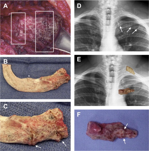 Costochondral calcification, osteophytic degeneration, and